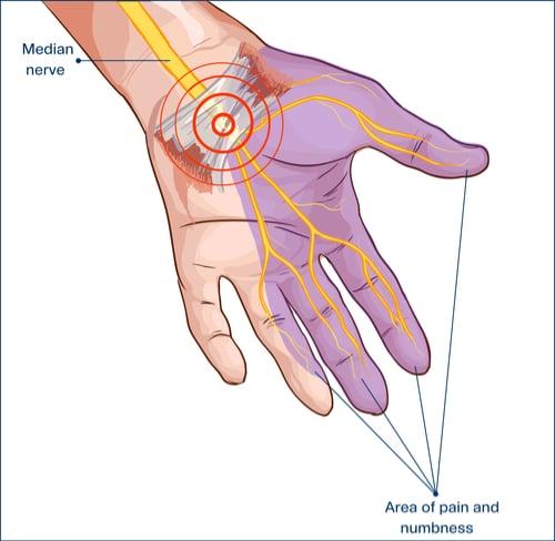 CTS- Median Nerve Pain