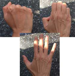 Hand Exercises- Fist to Fan