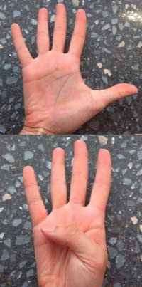 Hand Exercises- Thumb Flexion and Extension