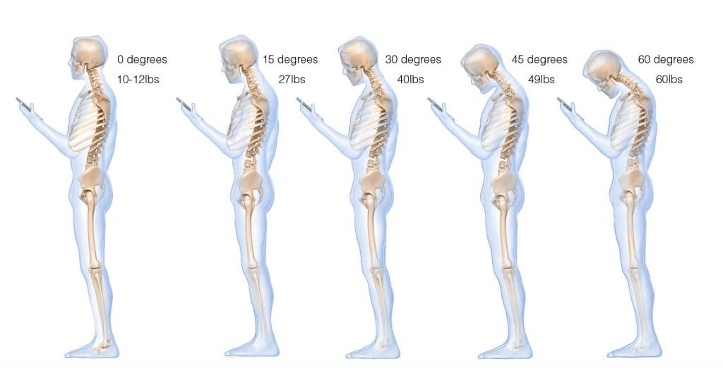 Weight of a Person's Head Based on Neck Posture and Angle