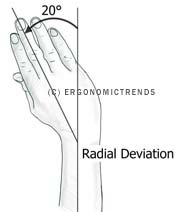 Radial Deviation (Flexion) Diagram