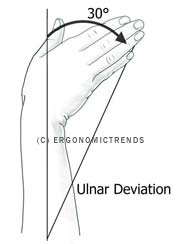 Ulnar Deviation (Flexion) DIagram