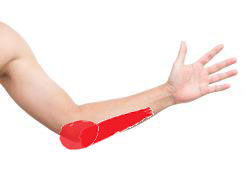 Tennis Elbow Pain and Tendonitis statistics